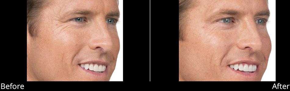 besana-medspa-botox-before-&-after-denville-nj