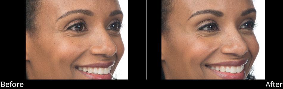 besana-medspa-botox-before-&-after-denville-nj2