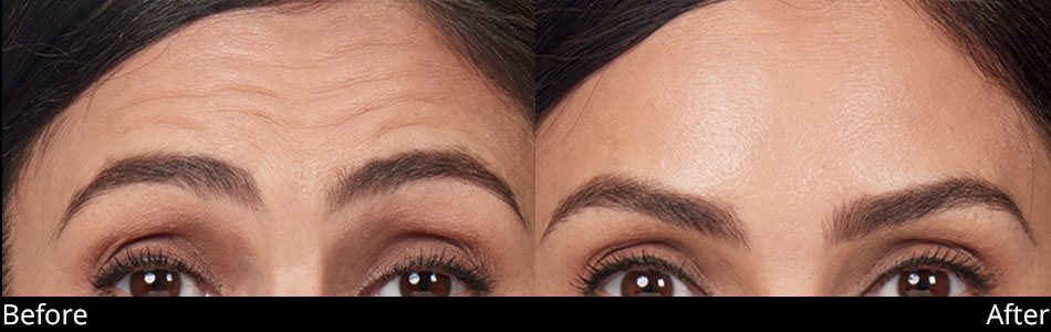 besana-medspa-botox-before-&-after-denville-nj3