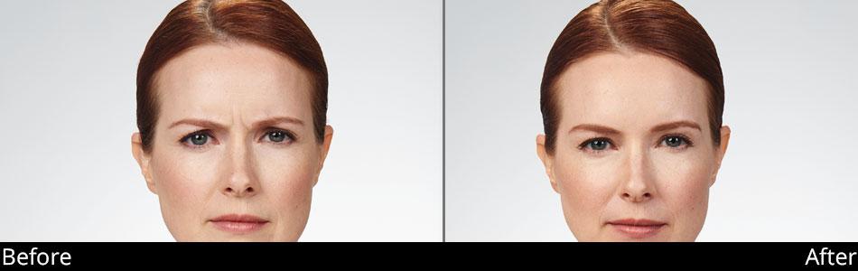 besana-medspa-botox-before-&-after-denville-nj4