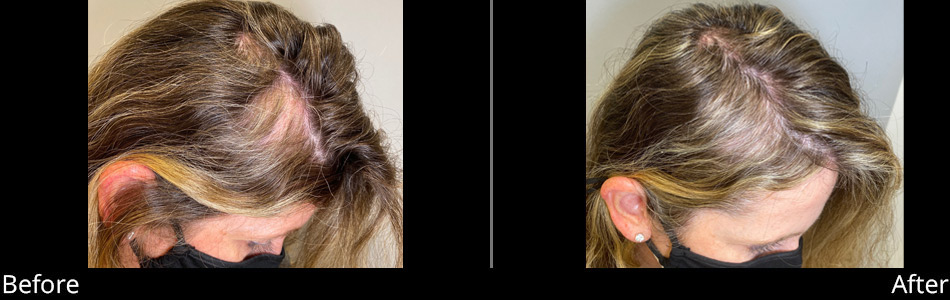 prp-hair-restoration-before-&-after
